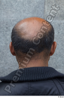 Street  601 bald hair head 0001.jpg